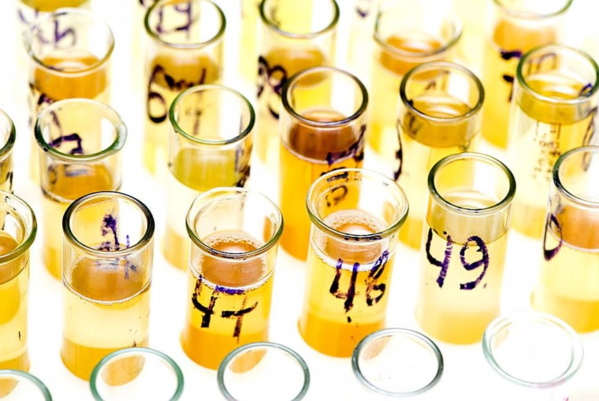 What Employers Should Know About Dilute Specimens in Drug Tests
