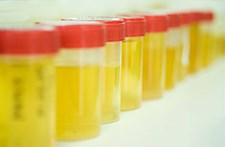 How to Avoid Adulteration in Employee Drug Testing