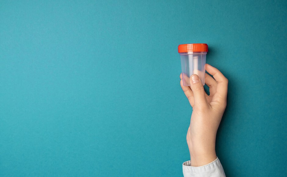Understanding an Invalid Drug Test: 7 Questions to Follow Up With