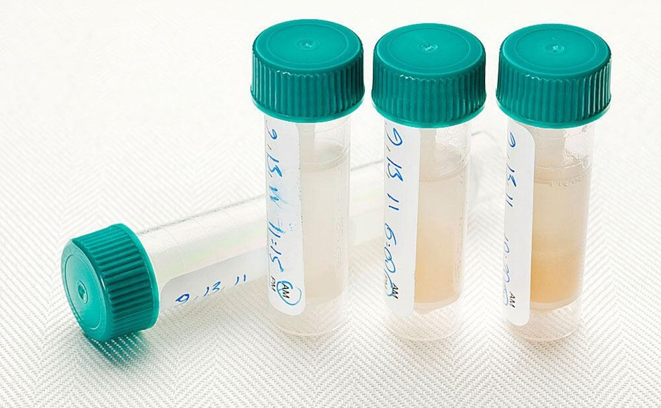 Everything You Need to Know about Oral Fluid Drug Testing