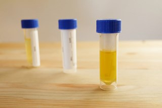 What form is used to document urine collection under DOT drug testing rules?