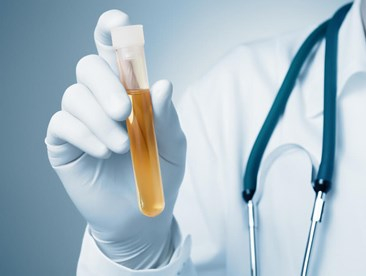 Who will administer my urine drug testing?