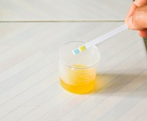 The Differences Between FEME Urine Drug Screening and Urinalysis